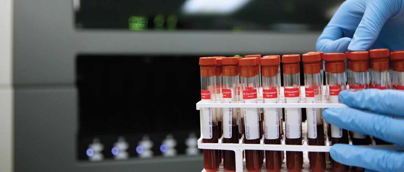 Controlli di qualità per centri trasfusionali
